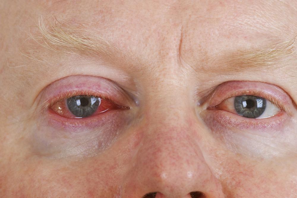 Red Eye Chandler